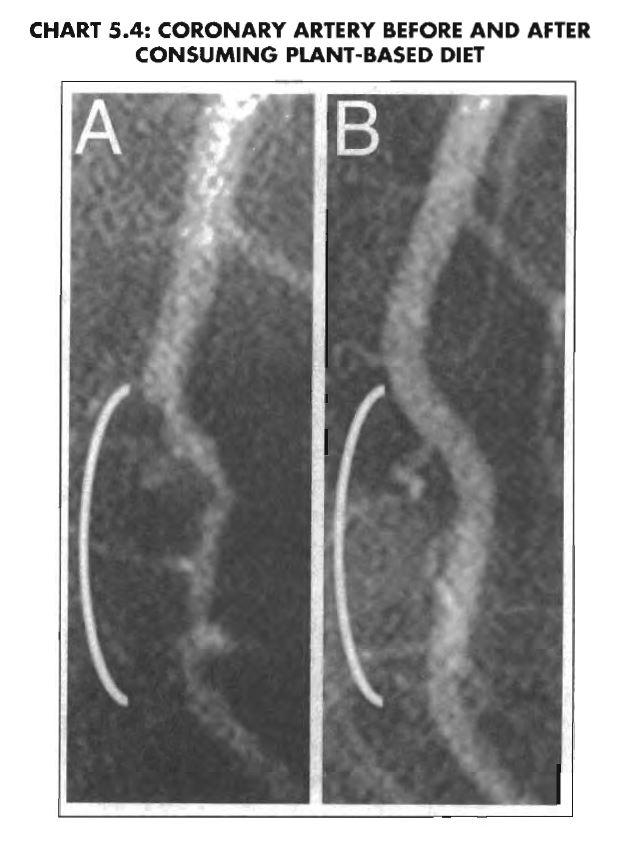 esselstyn arterie